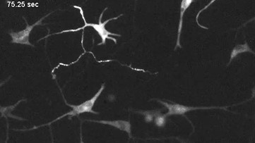 Incredible Neuron-Like Activity Seen in Skin Cells for First Time