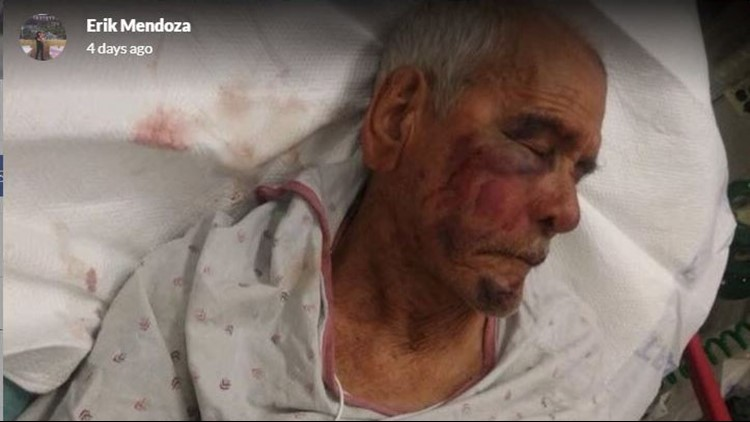 Erik Mendoza shared this photo as part of a GoFundMe for his grandfather, who was assaulted while on a daily walk in South Los Angeles.