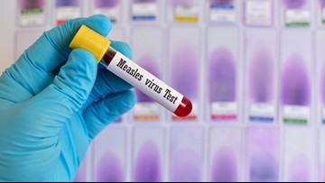 1st measles case diagnosed in East Tennessee