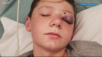 Mom of Tennessee teen shot in head with a BB gun has warning for other parents