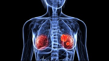 Proton therapy for treating left-sided breast cancer plays a crucial part in sparing damage to your heart.