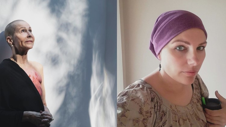 Buddy Check 10: Living with metastatic breast cancer