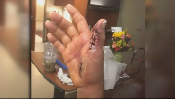 Knoxville woman almost loses arm from flesh-eating bacteria; blames nail salon