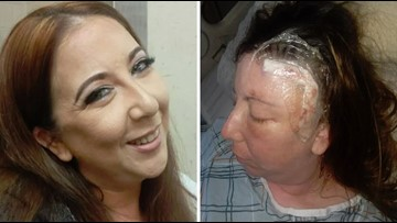 Woman's 'brain tumor' turns out to be parasite growing in her head