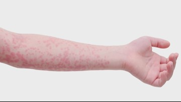 TN man with measles was not vaccinated, may have exposed people in Miss. during travel