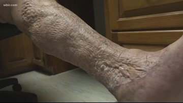Flesh-eating bacteria cases extremely rare