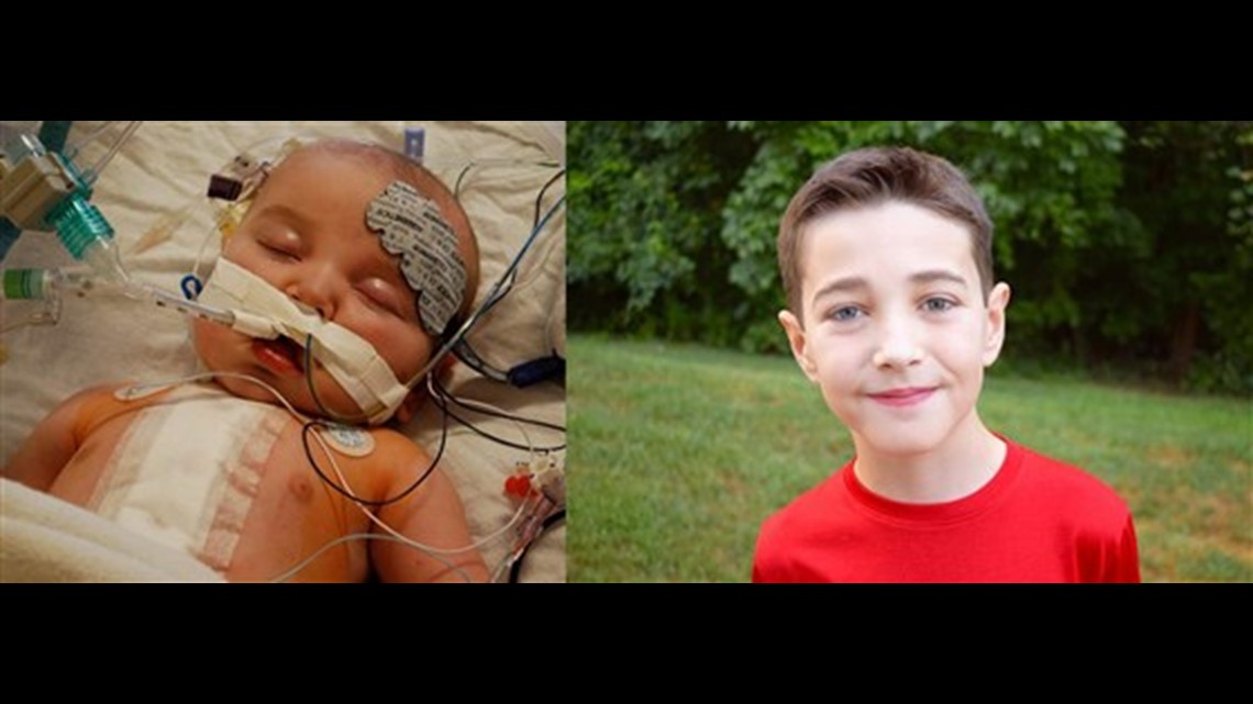 Inspired by the 10-year challenge, kids born with heart defects celebrate their new lives